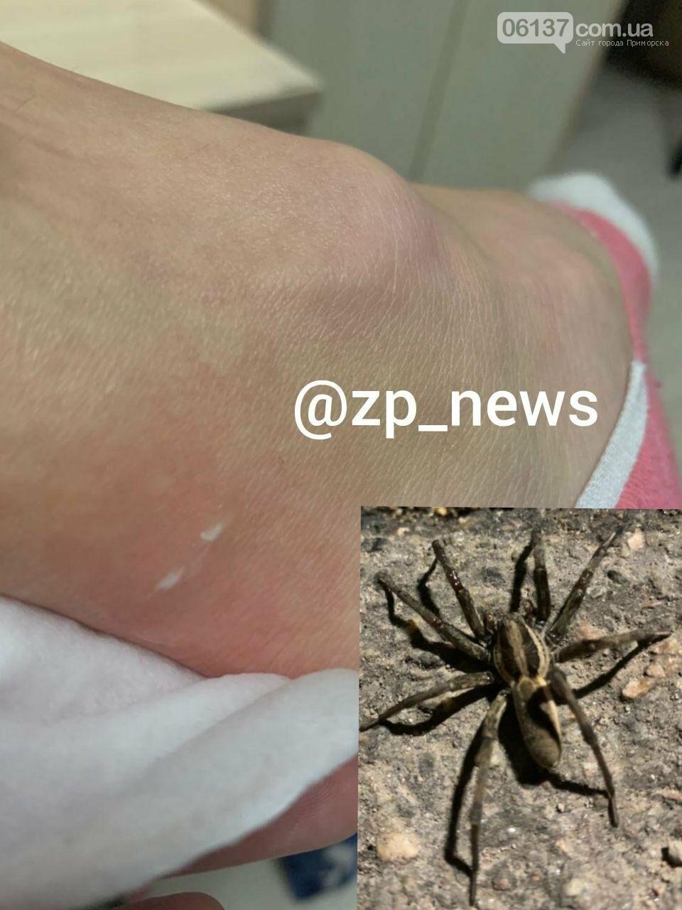 Жительницу Запорожья укусил опасный паук. Фото, фото-1
